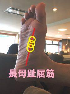 長母趾屈筋のアプローチポイント