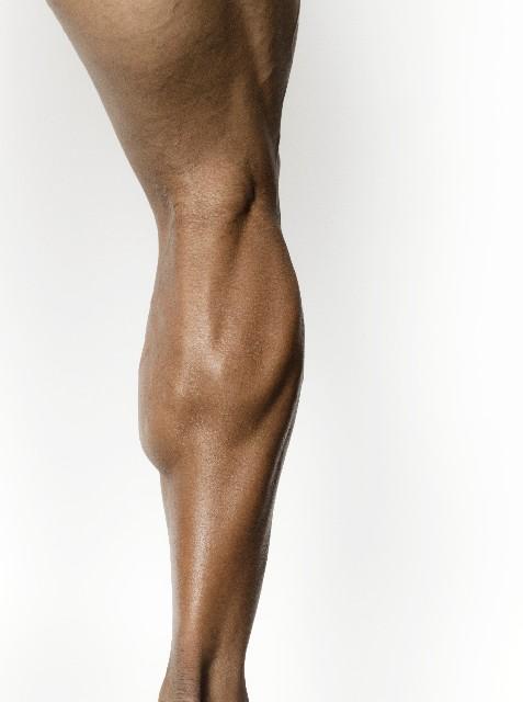 下腿コンパートメント症候群