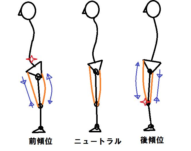 骨盤の向き