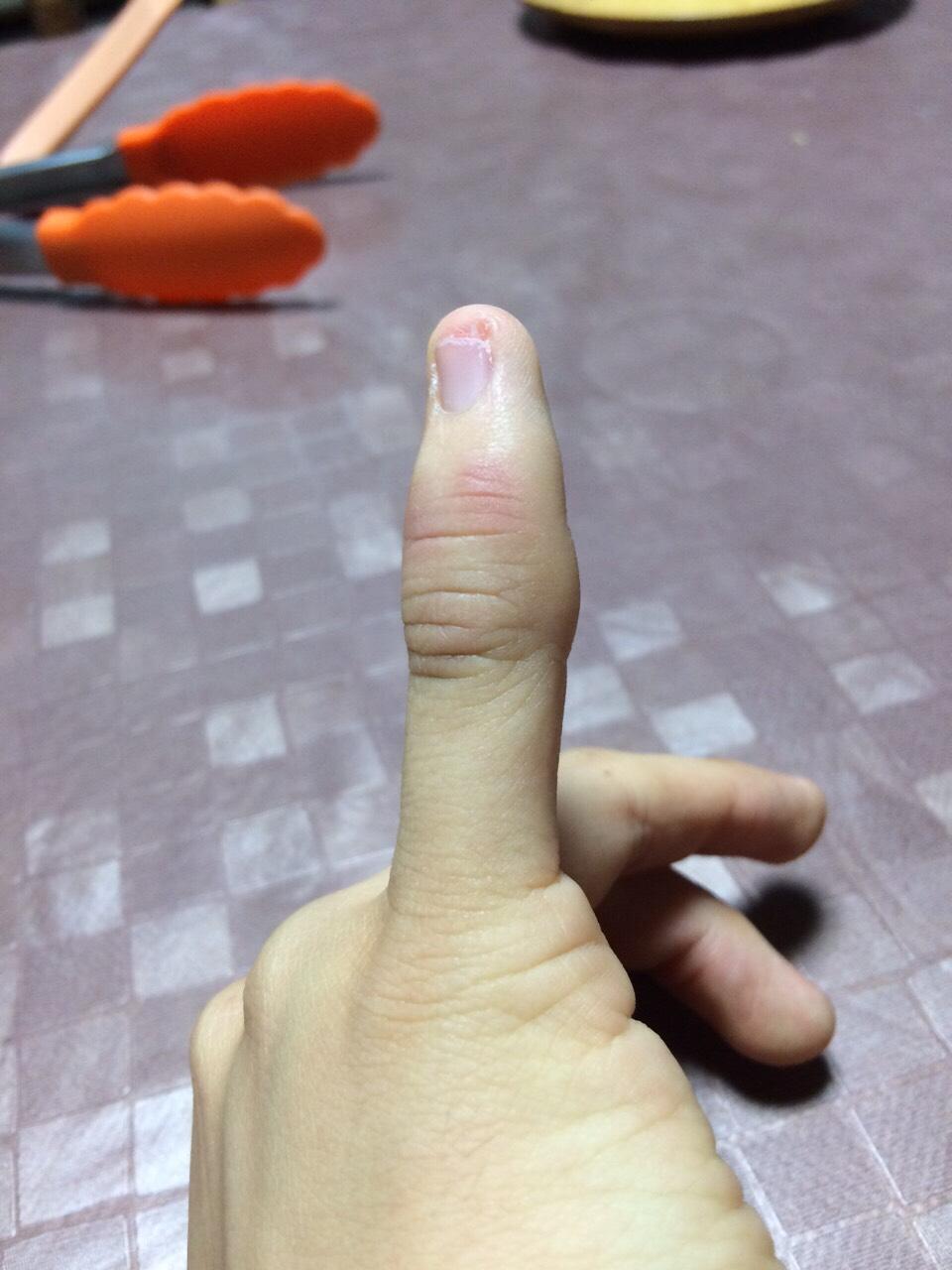 指の捻挫による炎症