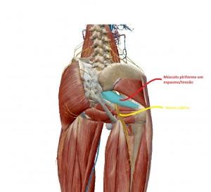 梨状筋/坐骨神経
