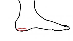 踵骨下脂肪体