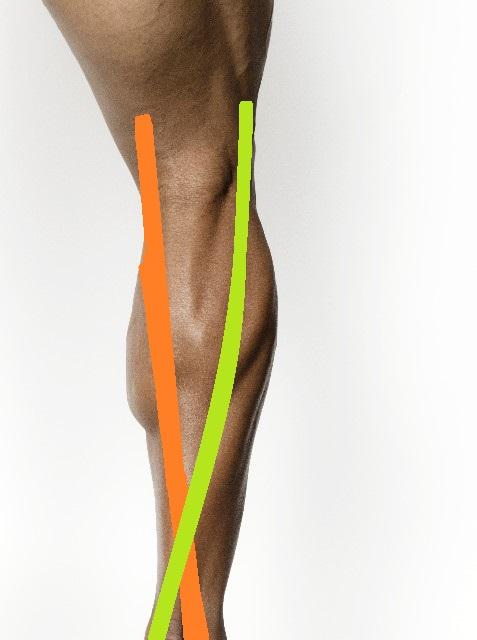 下腿三頭筋のテーピング