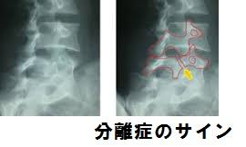 腰椎分離症のレントゲン