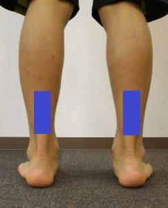 アキレス腱炎に多い硬くなりやすい場所