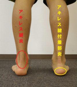 アキレス腱炎とアキレス腱付着部炎