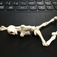 腰痛のガイコツ