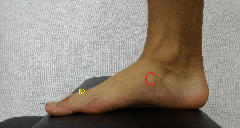 外脛骨の場所