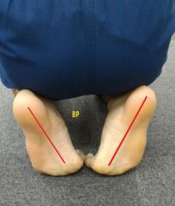 足底筋膜の間違ったストレッチ