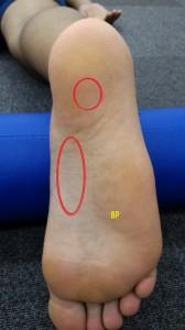 足底筋膜炎の部位