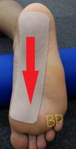 足底筋膜のテーピング