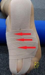 足底筋膜炎のテーピング3