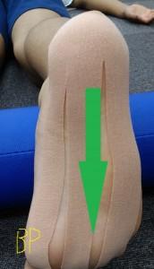 足底筋膜炎のテーピング4