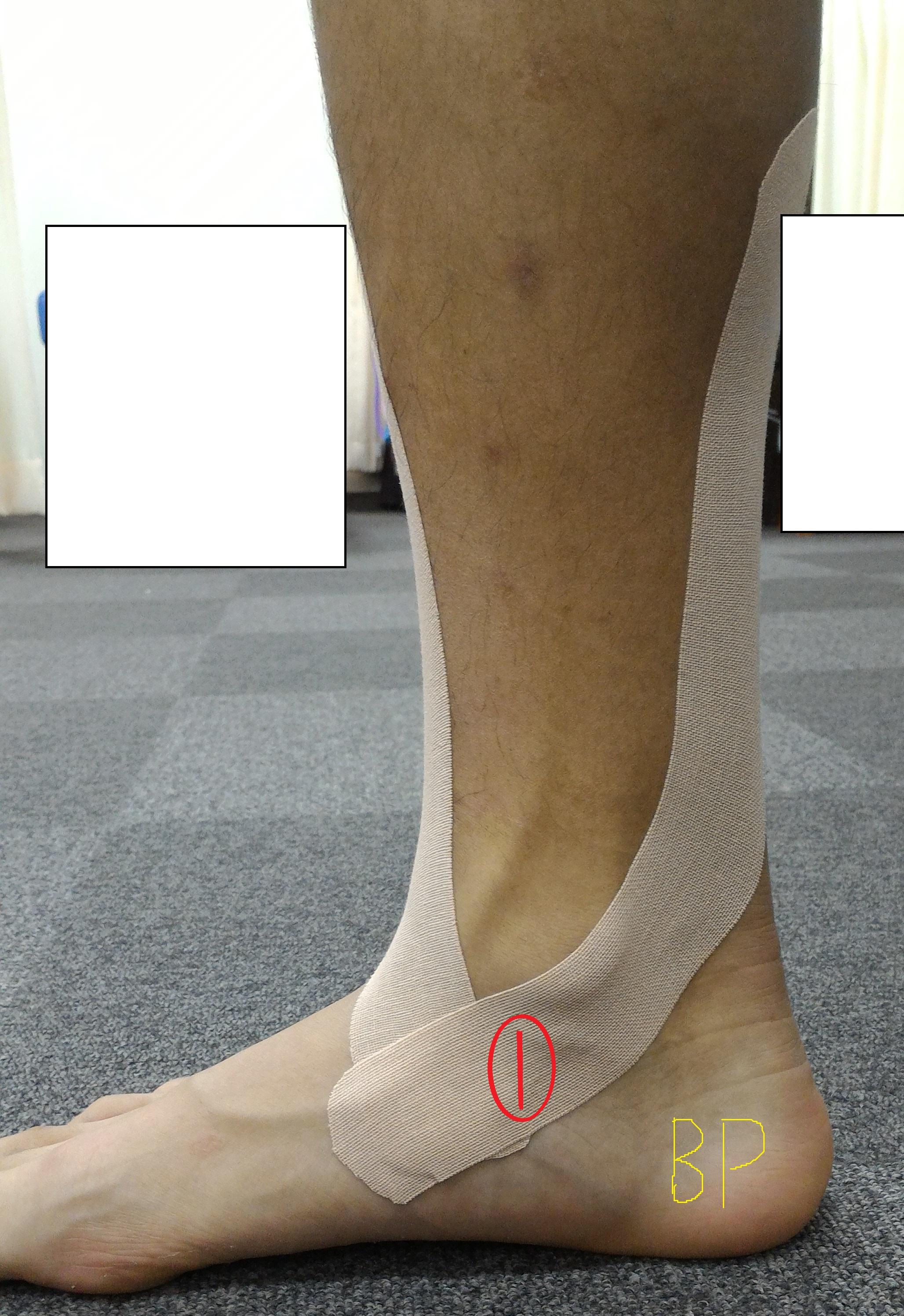 後脛骨筋のテーピング