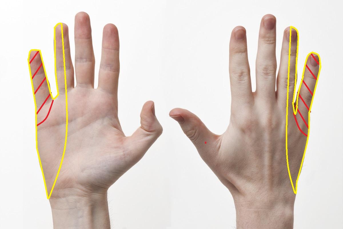 尺骨神経支配領域