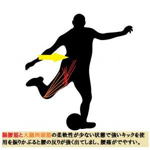 サッカーでの腰痛