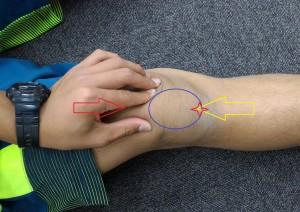膝蓋靭帯炎のテスト方法