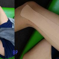 腸脛靭帯炎のテーピング
