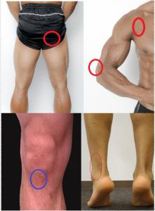 腱の圧迫部位の例