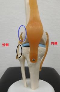 膝外側のスポーツ障害