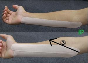 肘の内側が痛い場合のテーピング