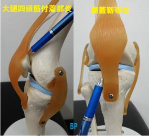 膝蓋靭帯炎と大腿四頭筋付着部炎