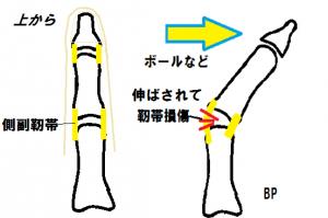 側副靭帯の損傷
