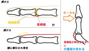 掌側板と剥離骨折