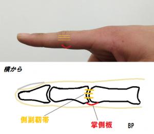 側副靭帯と掌側板