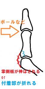 掌側板損傷と骨折