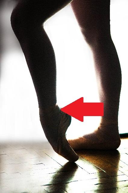 足首の後ろが痛い有痛性三角骨