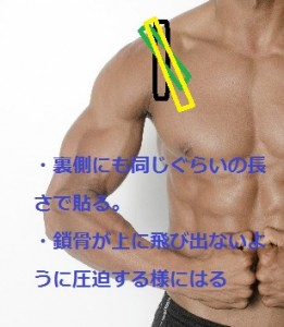 肩鎖関節のテーピングについて