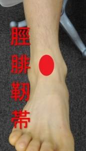 脛腓靭帯損傷