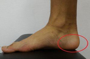 踵骨の部分