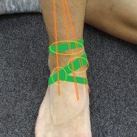 足首の前でつまりの原因となる部分