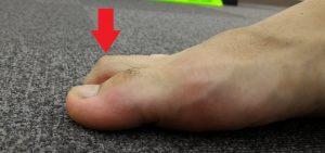 槌状足趾症とは