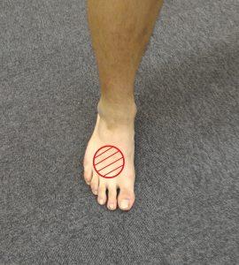 足の甲の疲労骨折の部分