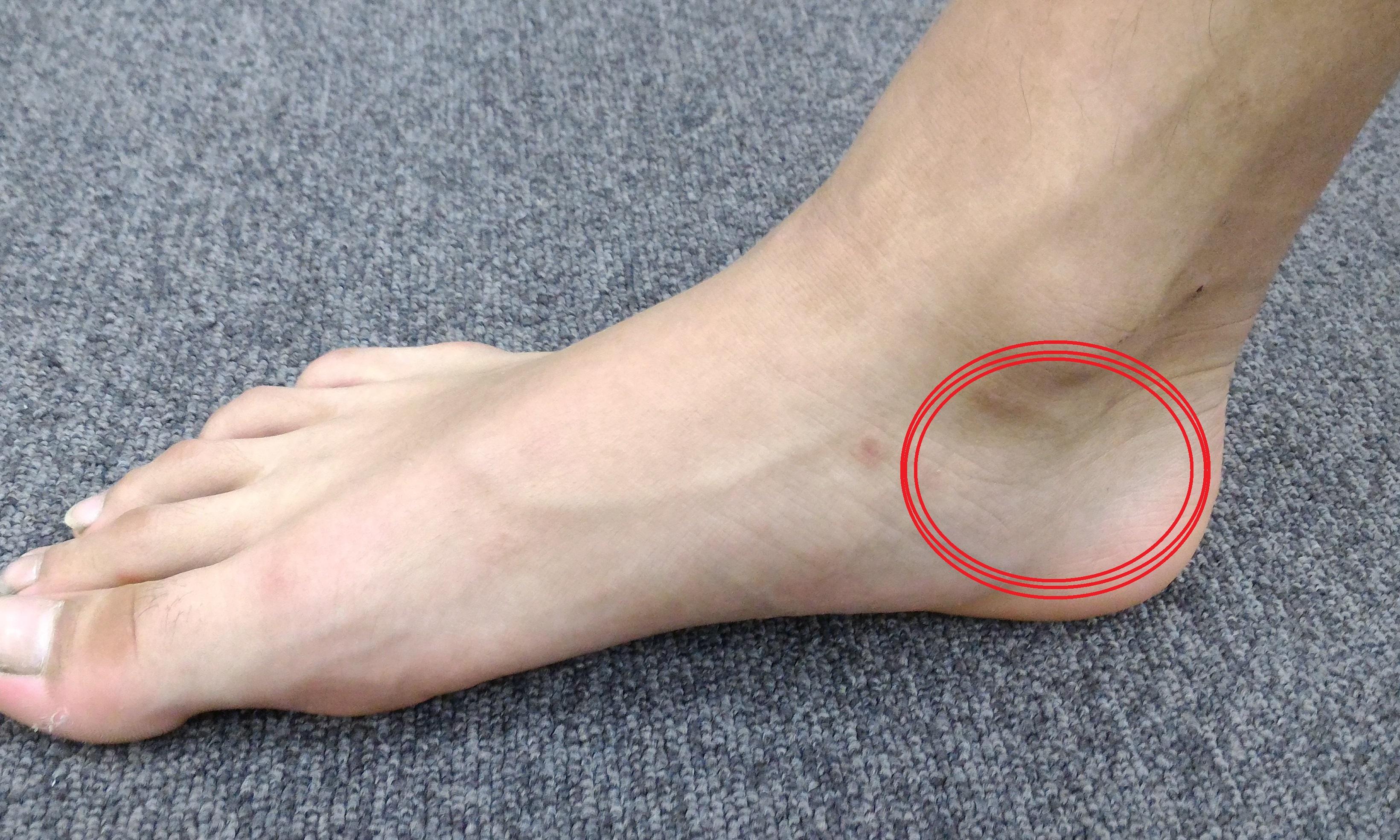足の内側のポイント