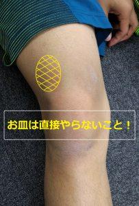有痛性分離膝蓋骨のポイント