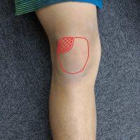 有痛性分離膝蓋骨(Ⅲ型)