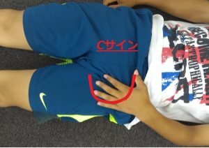 股関節インピンジメント症候群のCサイン