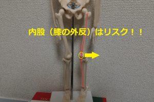膝蓋骨脱臼の原因