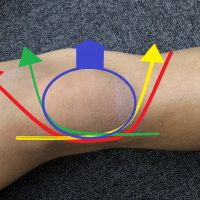 膝蓋骨脱臼のテーピング