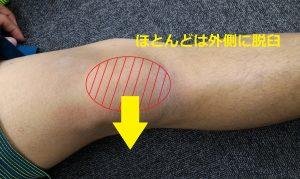 膝蓋骨脱臼について