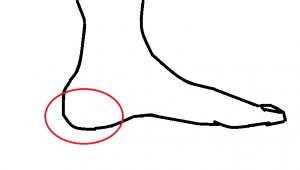 セーバー病は踵の痛み