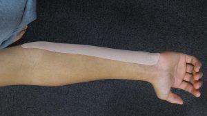 尺側手根屈筋のテーピング