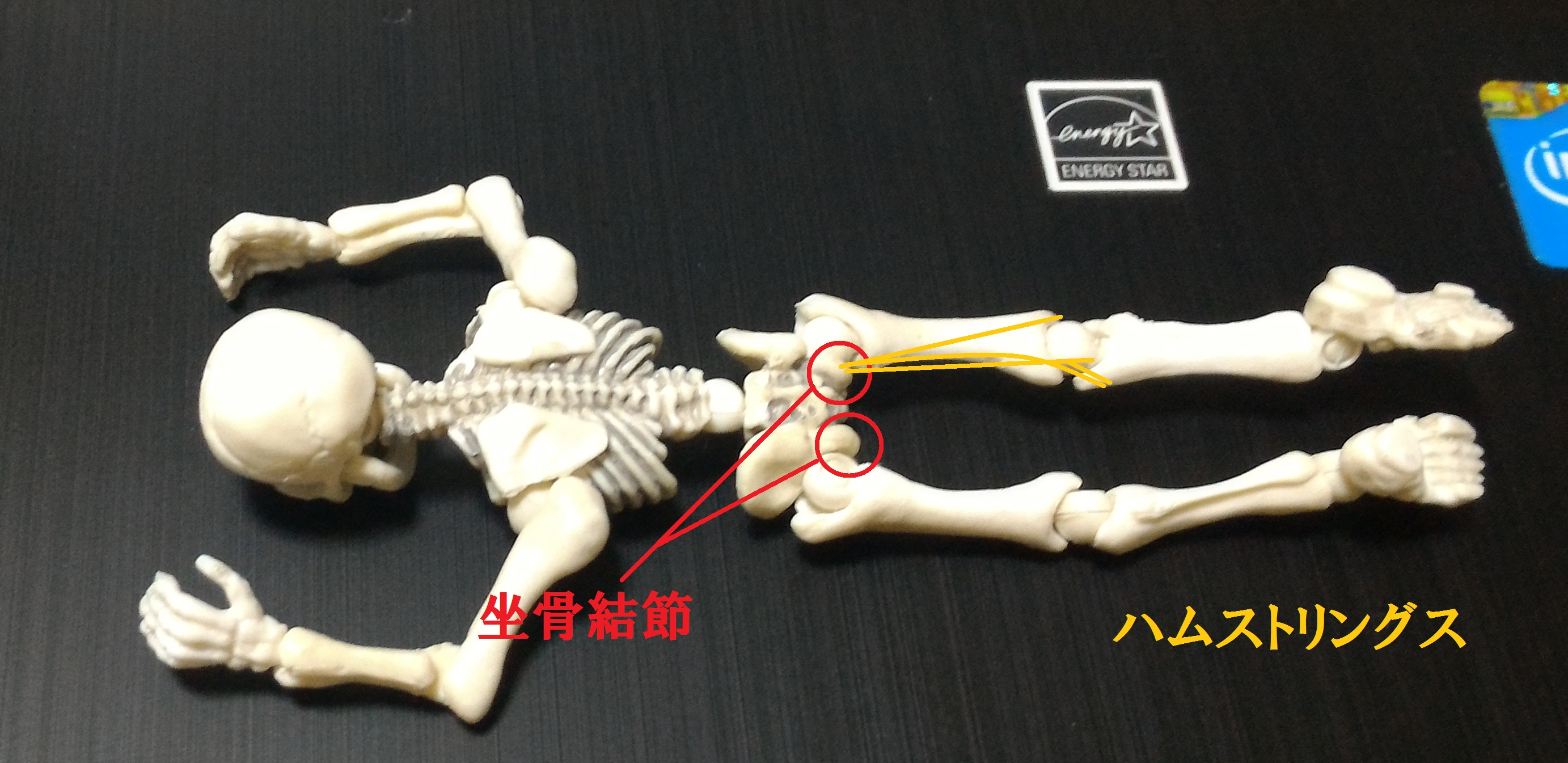 坐骨結節とは