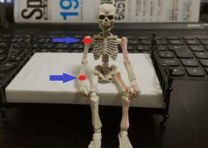 骨端線損傷