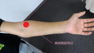 腕橈関節の位置