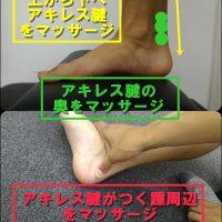 アキレス腱炎のケア